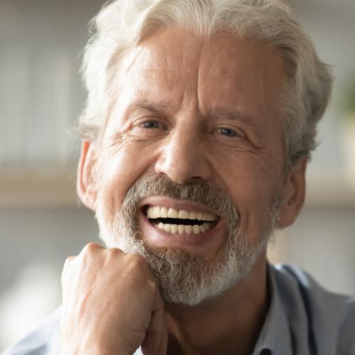 Dental-Implants-stellar
